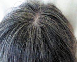 haruシャンプー_白髪頭