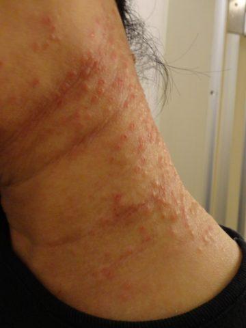 副作用の怖さを知ると使えない!脂漏性皮膚炎にステロイド2