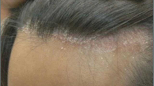 脂漏性皮膚炎に効く塗り薬はない?市販薬も調べてやっと見つけたのは…2