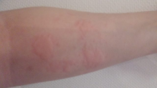 接触性皮膚炎はうつる?
