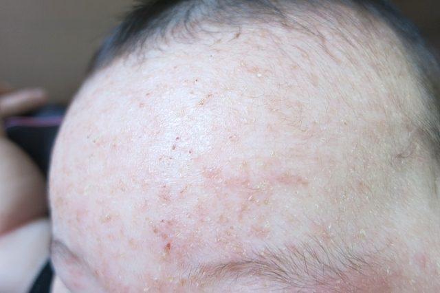 ドットエヌシャンプーはアトピー性皮膚炎でも使って大丈夫?